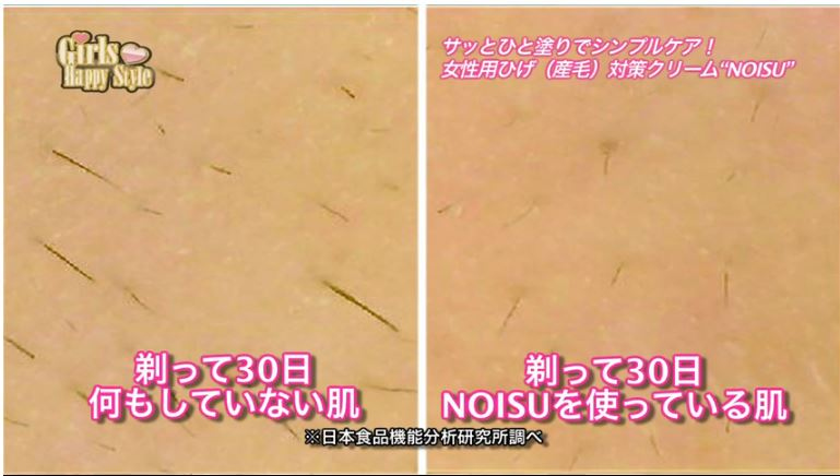 noisu before after